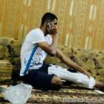 """مدني الرياض يحرر يد طفلة من """"ترمس شاي"""""""