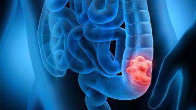 «الصحة» توضّح طرق الوقاية من سرطان القولون