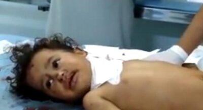 بالفيديو جريمة جديدة لمليشيات الحوثي الإرهابية تسفر عن إصابة 6 مدنيين بينهم 4 أطفال وامرأة بحبس الحديدة