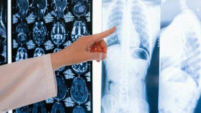 الإمارات ثاني دولة بالعالم توافق على دواء لعلاج سرطان الرئة