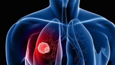 3 أسباب لـ«سرطان الرئة».. و5 علامات تكشف الإصابة بالمرض