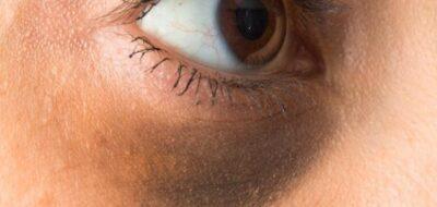 مدينة الملك عبدالله الطبية: 4 أسباب لظهور الهالات السوداء وطرق العلاج