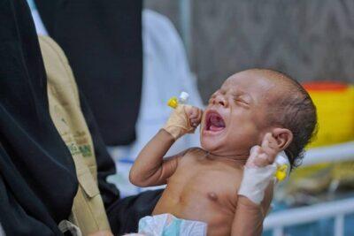 مركز الملك سلمان يقدم مشروعدعم التغذية للأطفال والأمهات الحوامل والمرضعات في اليمن