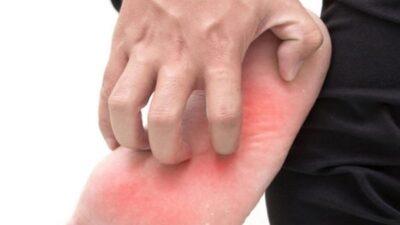 أسباب فطريات القدم وطرق علاجها وسبل الوقاية منها