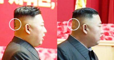 ظهور زعيم كوريا الشمالية بكدمة وضمادة جروح على رأسه يثير جدلًا
